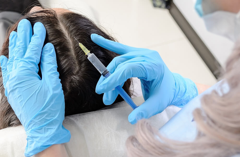 woman receiving hair restoration treatment