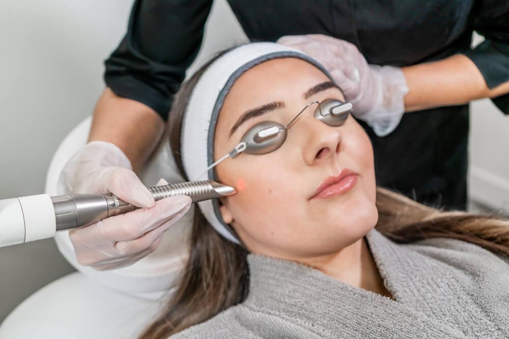 woman receiving photofacial