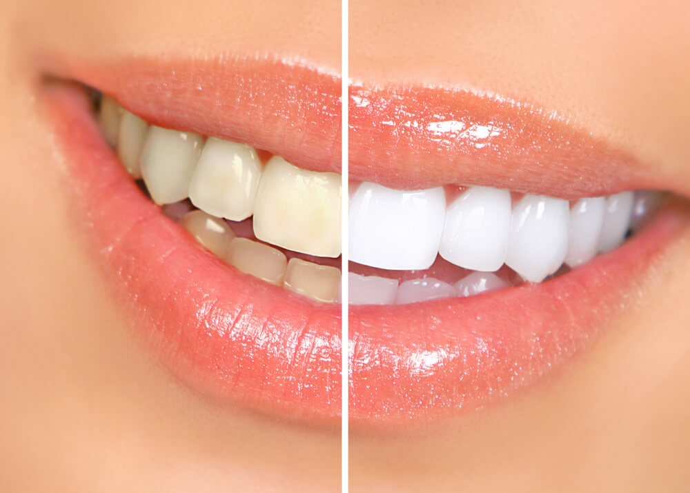 teeth whitening concept